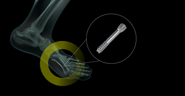 Keyvisual foot